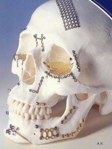osteosynthese plaat plaatjes kaak hoofd jukbeen bovenkaak oogkas schedel