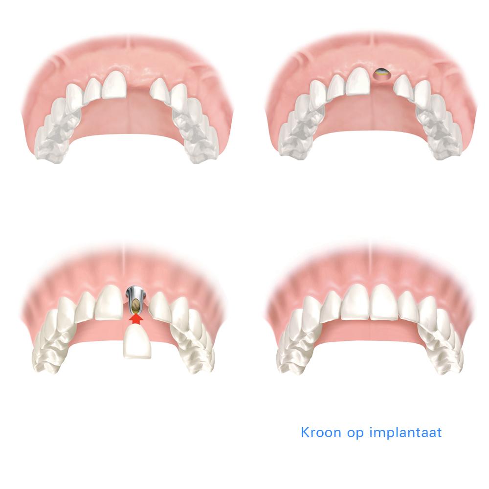 overzicht-kroon-op-implantaat