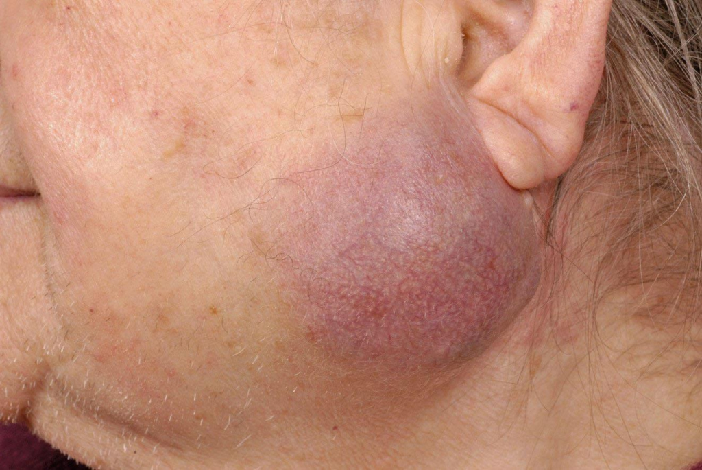 bult achter oor lymfeklier
