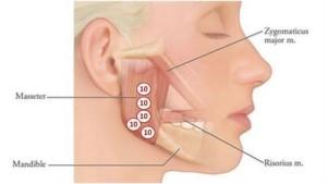 knarsen kaakchirurg botox klemmen nvdfe tandarts vereniging