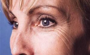 kraaienpootjes rimpels rondom oog ogen kraaienpootje orbicularis botox