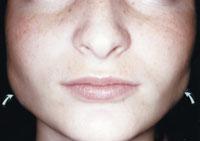 verdikte kauwspier verdikking spier masseter hypertrofie
