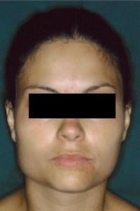 zwelling kauwspier verdikking masseter botox dysport behandeling voor