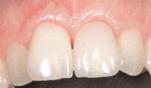 Een implantaat waarop een kroon is geplaatst herstelt een verloren gegane snijtand perfect.
