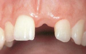 Een verloren gegane voortand / snijtand is uitstekend te herstellen met behulp van een tand implantaat